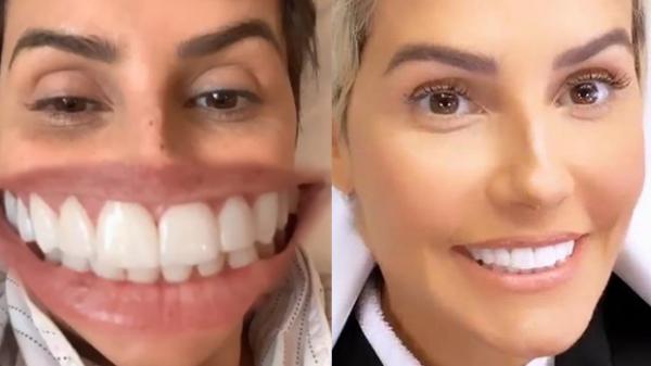 deborah-secco-rebate-criticas-sobre-novos-dentes